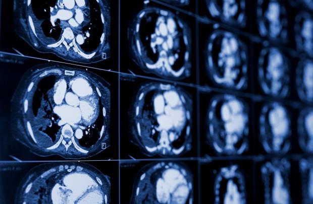 Udar mózgu: wiele czynników ryzyka można zminimalizować