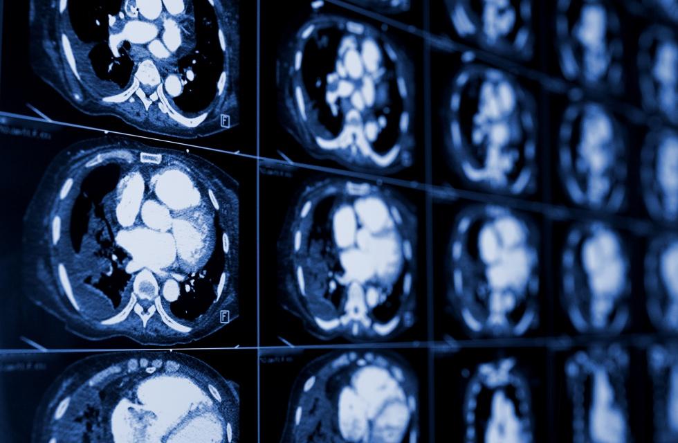 Zaangażowani społecznie seniorzy mają zdrowsze mózgi
