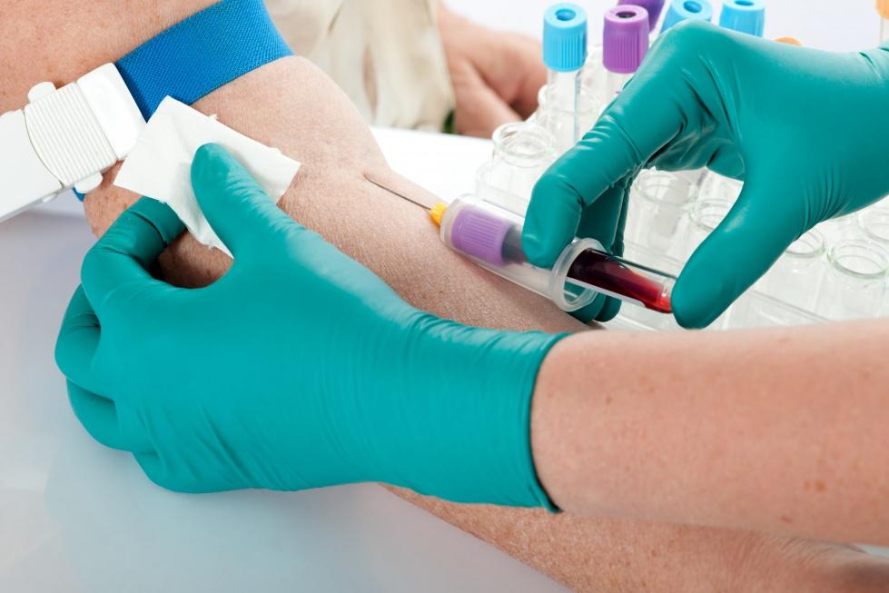 Pamiętasz te czasy? Zrób test wykrywający przeciwciała anty-HCV