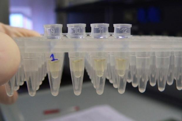 Bakterie jelitowe mogą powodować choroby stawów?