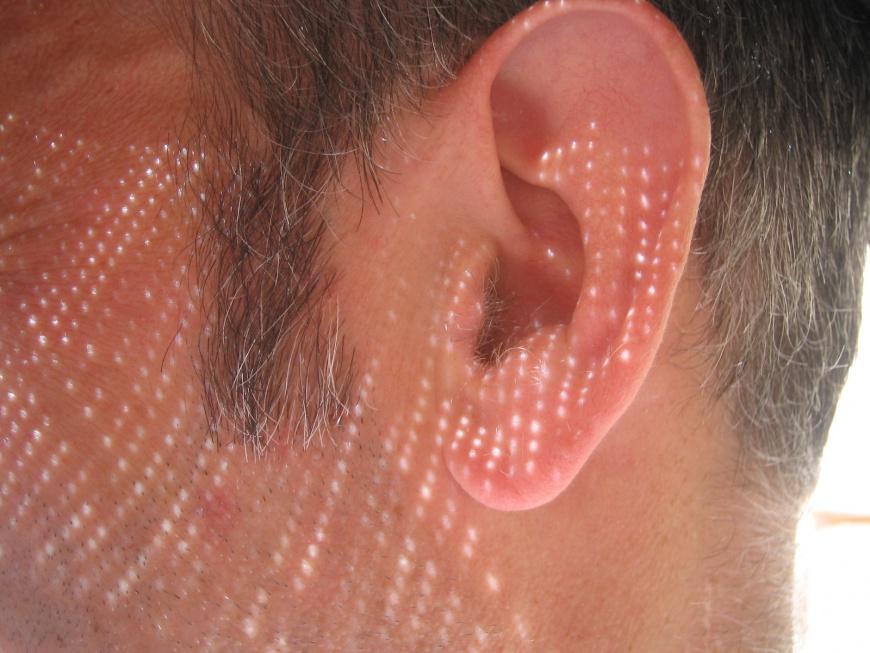 Poznań: lekarze wszczepili 63-latkowi implant ucha środkowego