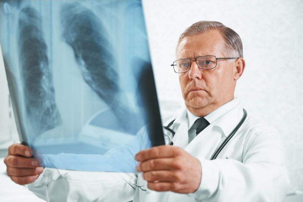 Eksperci o POChP: nie straszmy 80-latków, że paląc umrą wcześniej