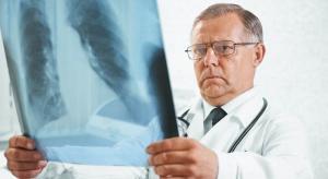 Samoistne włóknienie płuc: ryzyko zachorowania rośnie wraz z wiekiem