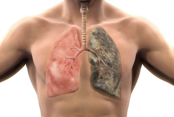 Choroby płuc: co roku umiera z ich powodu 37 tys. Polaków