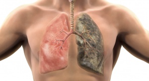 Największy zabójca wśród nowotworów to rak płuc. Na walkę z nim wciąż wydajemy za mało