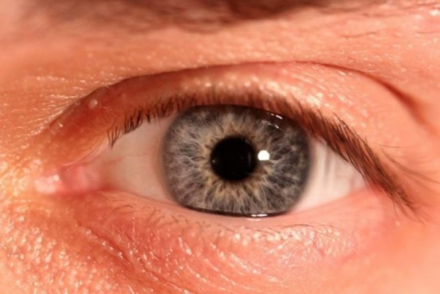 VAT na soczewki kontaktowe do korekty wzroku - bez zmian