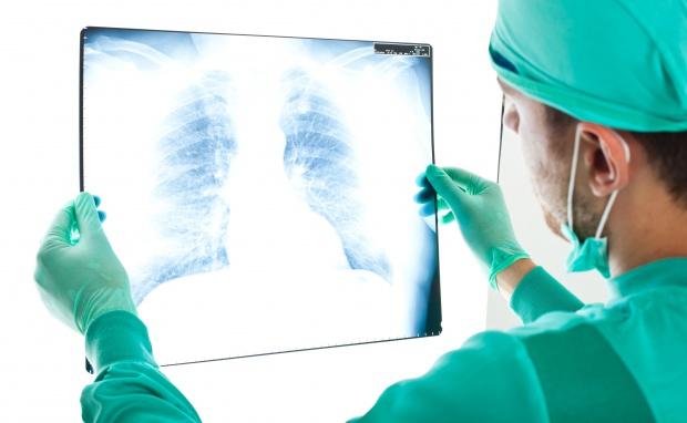 Powiat polkowicki: profilaktyka chorób płuc dla osób 50+