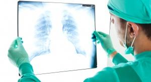Eksperci: jesteśmy świadkami rewolucji w leczeniu raka płuca