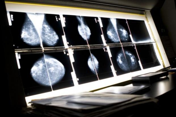 Bezpłatna mammografia dla pacjentek 50+