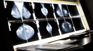 Bezpłatnie badania profilaktyczne: korzysta zaledwie 20-40 proc. kobiet