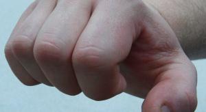Przemoc wobec starszych: najbardziej narażone są kobiety