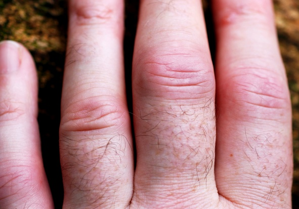 Statyny zmniejszają ryzyko zgonu u chorych z zapaleniem stawów