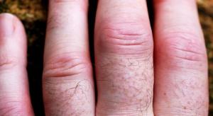 Badanie: reumatoidalne zapalenie stawów zbyt często leczone steroidami