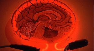 Dzięki USG wcześniej wykryjemy alzheimera?