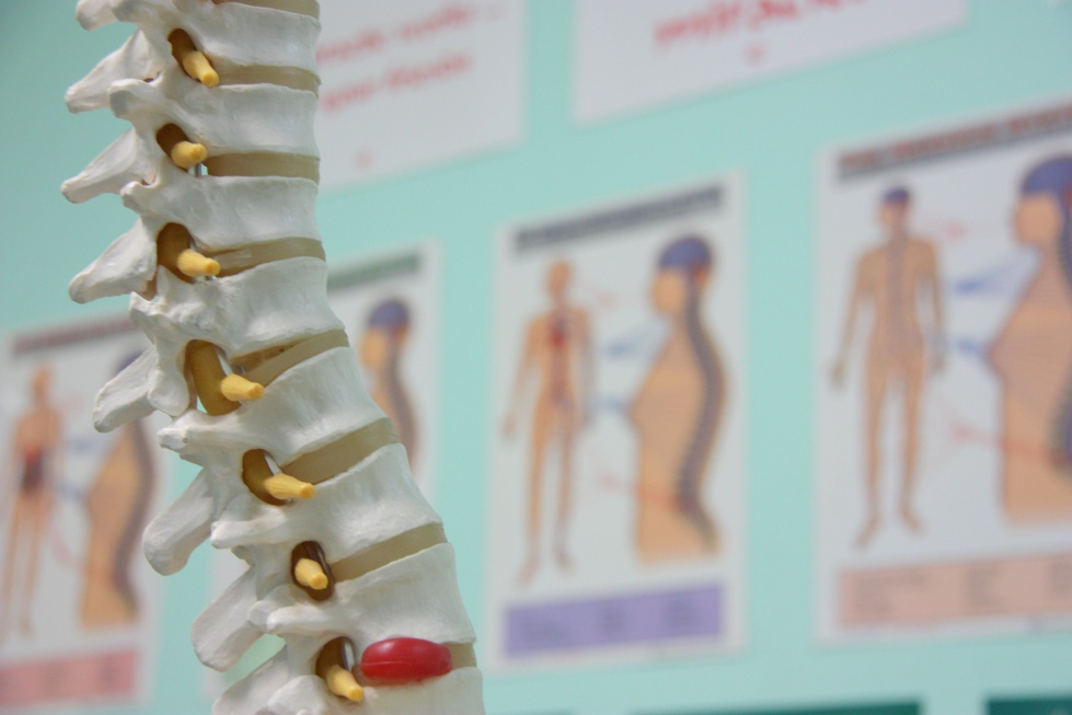 Kręgosłup: ból może być przeniesiony nawet do pięty