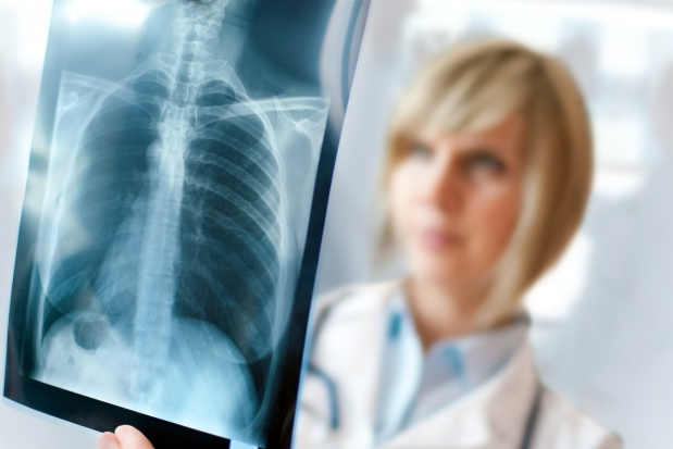 Rośnie wykrywalność raka płuca