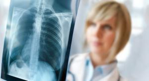 Zdrowie kobiet: rak płuca coraz groźniejszy, rak piersi w odwrocie