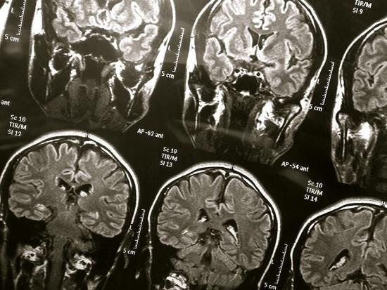 Pierwszym objawem alzheimera nie są zaburzenia pamięci