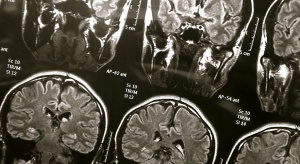 Eksperci: choroby mózgu największym wyzwaniem opieki medycznej