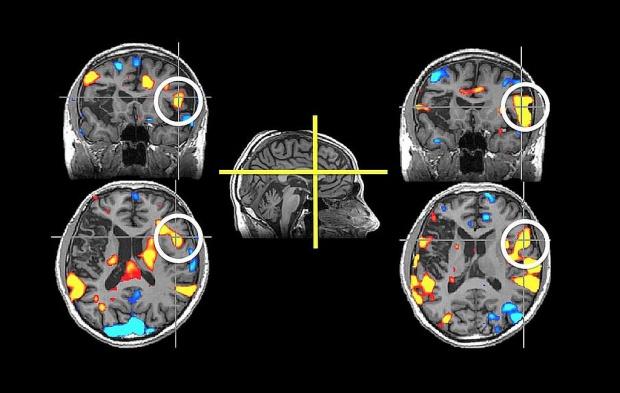 Ten minerał przenika z powietrza do mózgu. Groźne konsekwencje
