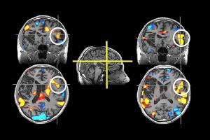 Związek zawarty w czerwonym winie obniża stan zapalny u chorych na alzheimera