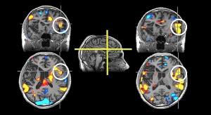Badania: wyższy poziom glukozy w mózgu źle wpływa na chorych na alzheimera