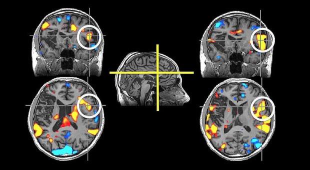 Test wykrywający alzheimera z krwi początkiem skutecznej walki z chorobą?