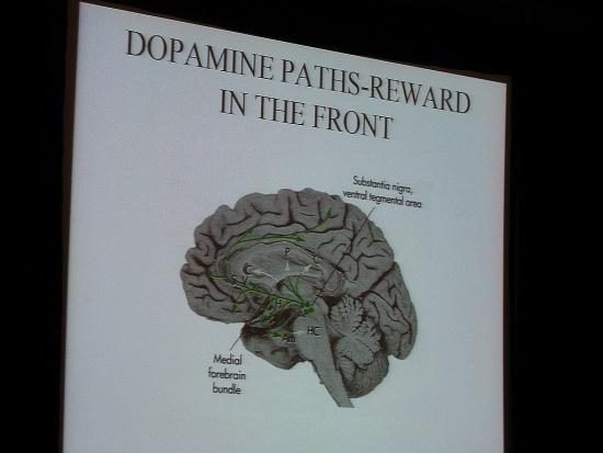 Menopauza powoduje zmiany w mózgu