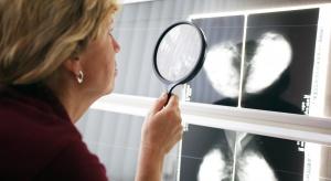 Diagnoza potwierdzająca nowotwór zwiększa ryzyko samobójstwa