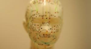Naukowcy: akupunktura pomaga w zaburzeniach pamięci