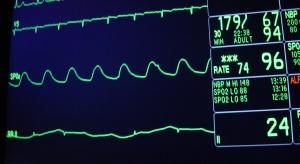 Wczesna wizyta u lekarza może uratować życie pacjentom z niewydolnością serca