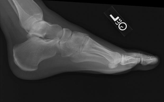 MZ: przełom w leczeniu stopy cukrzycowej. Otwarto...