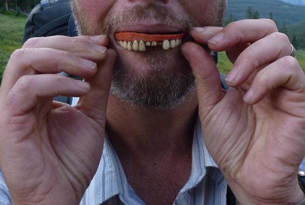 Eksperci: liczba utraconych zębów koreluje z podwyższonym ryzykiem zawału