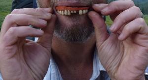 Im mniej zębów, tym większe ryzyko śmierci