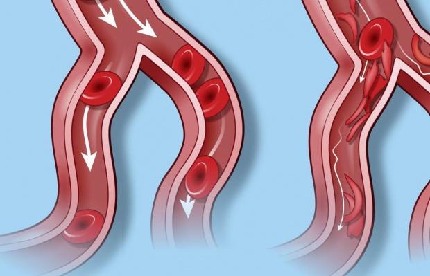 Eksperci: hipercholesterolemia najgorzej leczoną chorobą w Polsce
