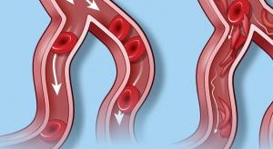 Badania: seniorzy mogą mieć tętnice dwudziestolatka. Wystarczy...