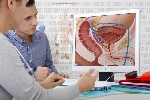 Onkologia: nowotwory prostaty coraz częstsze, mężczyźni potrzebują wsparcia