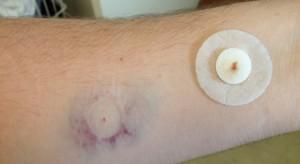 Szczepionka na grypę w formie plastra. Naukowcy: jest skuteczna i bezbolesna