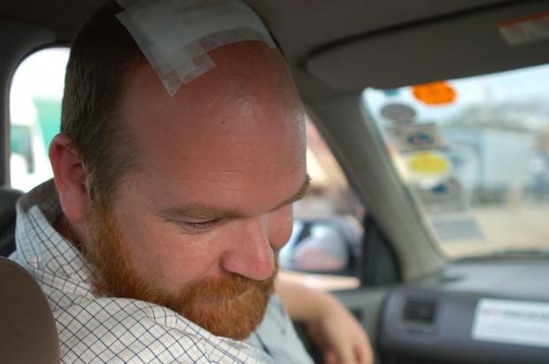 Urazy głowy wymagające hospitalizacji znacznie zwiększają ryzyko demencji