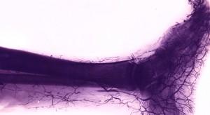 Choroby naczyń nóg: ruszyła ogólnopolska akcja bezpłatnych konsultacji